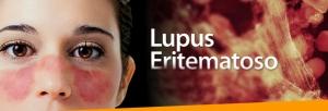 6 Manifestaciones del Lupus Eritematoso Sistémico