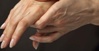 Datos de la OMS, indican que 1 de cada 30 personas sufre de Artritis Reumatoide