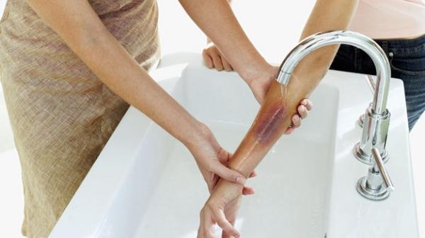 Ante una quemadura debes lavar el área afectada con abundante agua corriente y cubrirla con una manta húmeda limpia