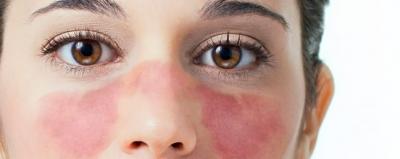 Los síntomas del Lupus, al ser esta una enfermedad que puede afectar cualquier parte del cuerpo