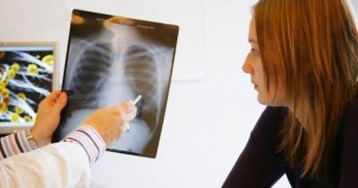 La OMS estima que hay más de 2000 millones de personas infectadas por tuberculosis